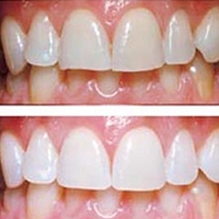 Conturarea estetica a dintilor
