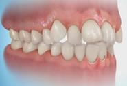 Inghesuiri dentare