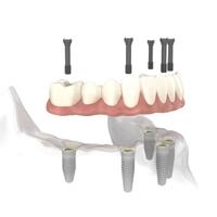 Punte fixa pe implanturi dentare
